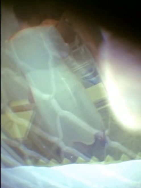 Medical hidden cam scenes with unaware girl participation